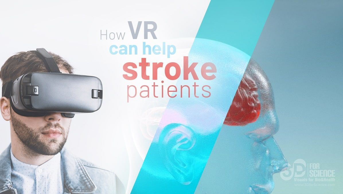 this is how vr help stroke patients