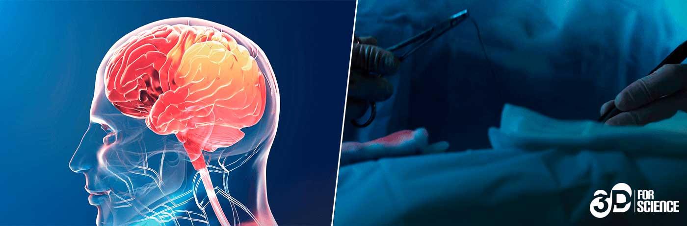 Head surgery virtual reality technology